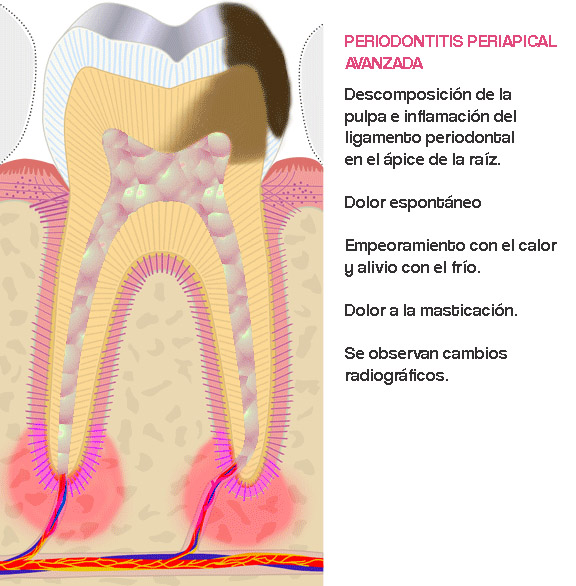 endodoncia, caries