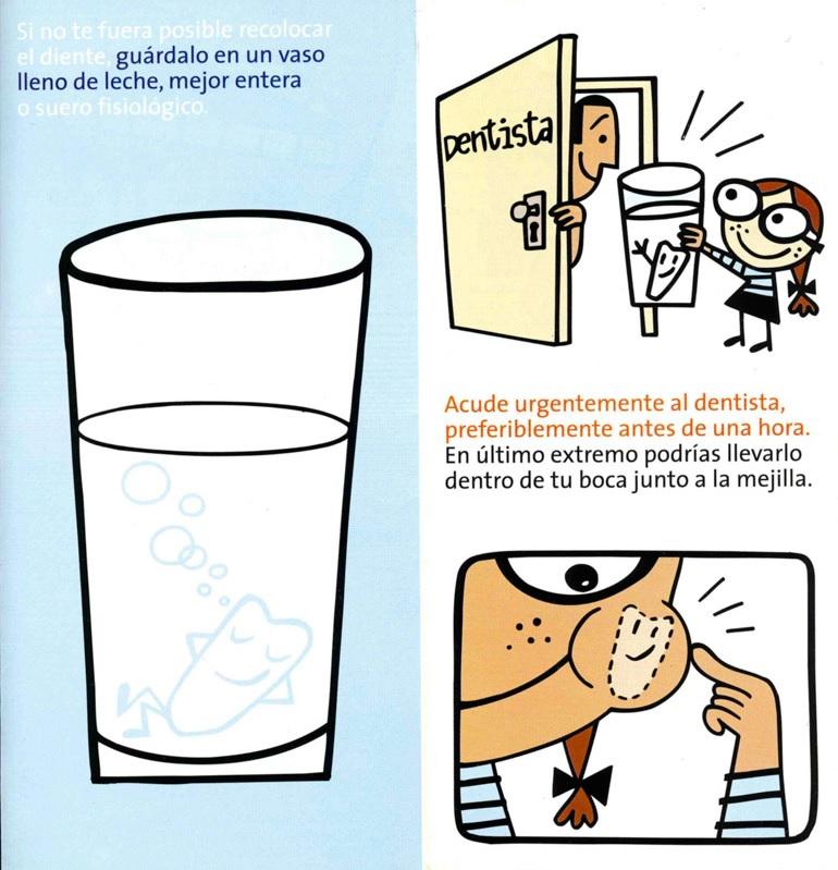 avulsion 2