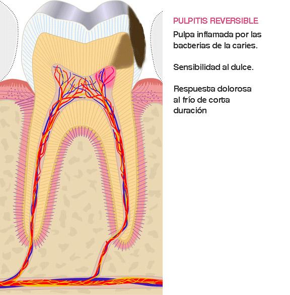 endodoncia, caries